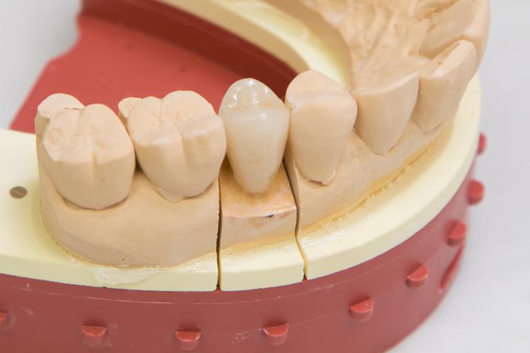 歯の形(見た目)を良くしたいならセラミック治療がおすすめです