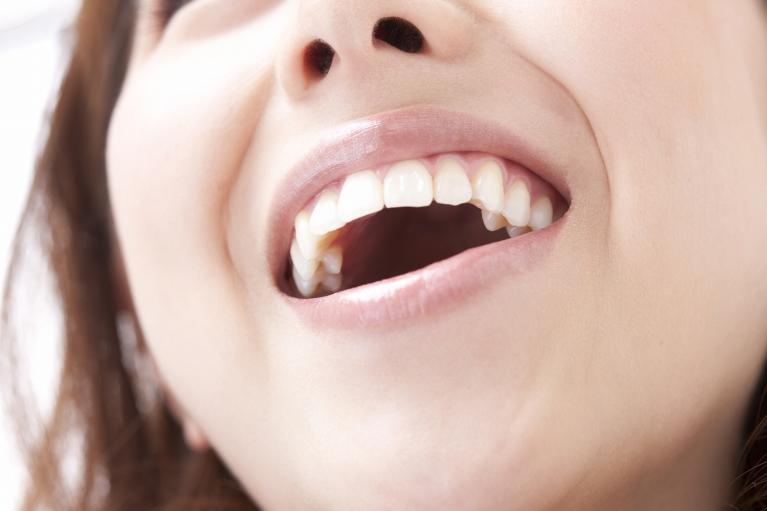 銀歯が気になって思いっきり笑えない方へ