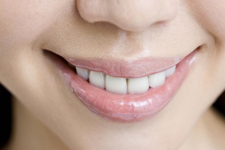 歯の変色が気になるならホワイトニングがおすすめです